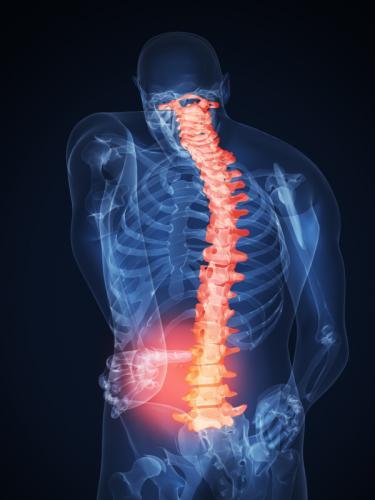 Боль в спине, мышечная боль, происхождение, механизм развития ...