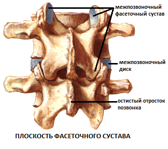Артроз фасеточного сустава