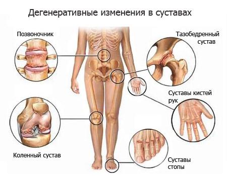 Артроз может поражать все суставы