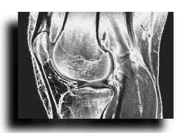 Магнитно-резонансная томография (МРТ) коленного сустава в аксиальной проекции (связки, мениск, суставной хрящ)