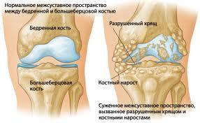 Остеофиты и разрастания в коленном суставе при артрозе