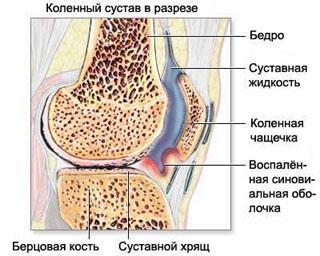 Воспаление синовиальной оболочки коленного сустава