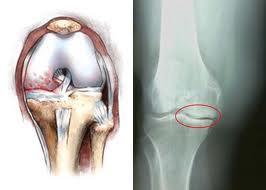 Рентгенография коленного сустава в прямой проэкции