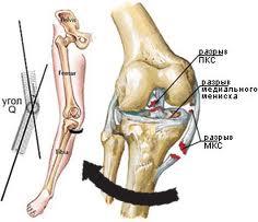 Х-образное искривление ноги в коленном суставе