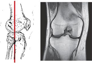Магнитно-резонансная томография (МРТ) коленного сустава во фронтальной проекции (связки, мениск, суставной хрящ) при травме.