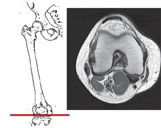 Магнитно-резонансная томография (МРТ) коленного сустава в аксиальной проекции (связки, мениск, суставной хрящ) при травме.
