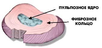 Разрыв фиброзного кольца
