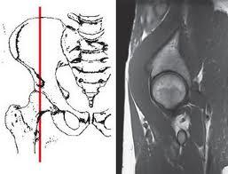 чем лечить трохантерит Боль в области тазобедренного сустава