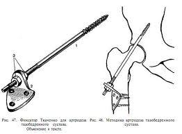 Артродез тазобедренного сустава