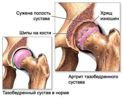 Боль в тазобедренном суставе симптомы болезней способ очистки суставов