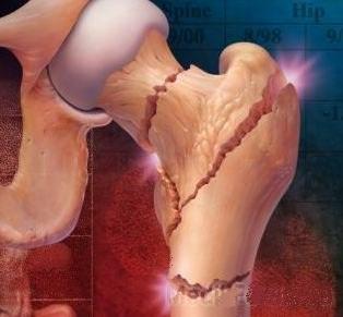 Возможные места перелома бедренной кости при остеопорозе