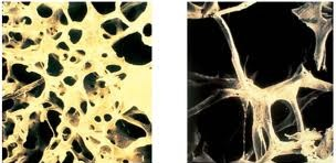 Разрежение костной ткани при остеопорозе