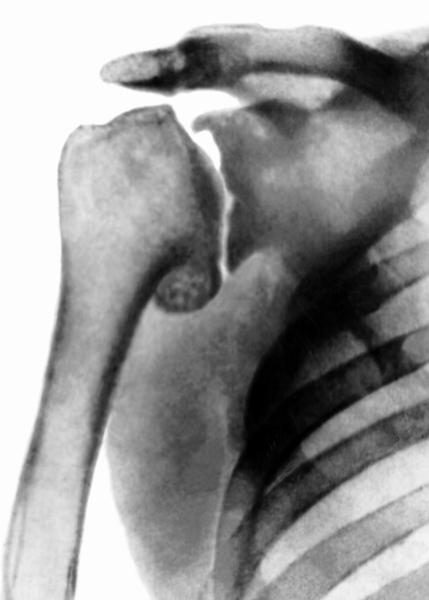 Рентген при артрозе плечевого сустава (в прямой проэкции)