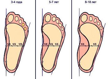 Профилактика плоскостопия у детей 2 3 лет