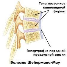 Клиновидные позвонки при болезни Шейермана