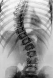 Рентген картина сколиоза